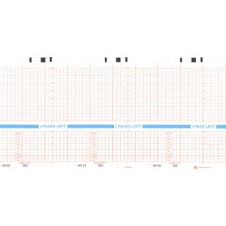 "HP M1910A Chart Paper 5.894"" x 49', 40 pads/bx"