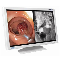 "90R0036 42"" Radiance Surgical Flat Panel Monitor"